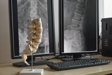 Artificial Human Lumbar Spine 251227744 - Procedures